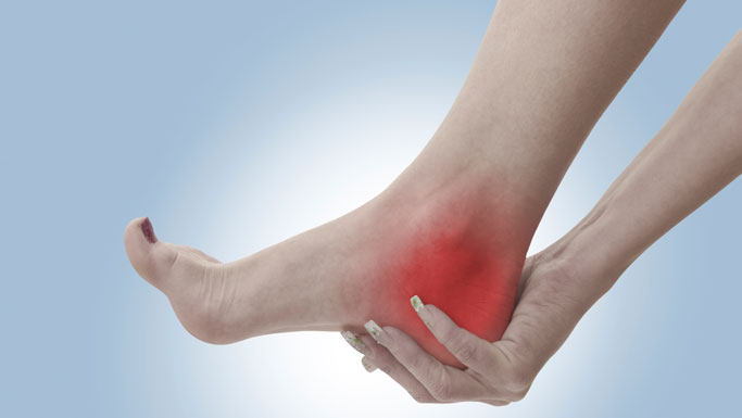 Concord Chiropractic Treatment for Plantar Fasciitis